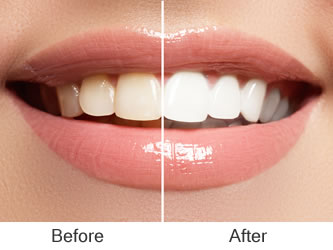 Teeth Whitening & Bleaching