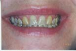 Dental Bridges and Crowns - Southern Indiana