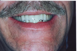 Cosmetic Dentistry - Louisville, KY